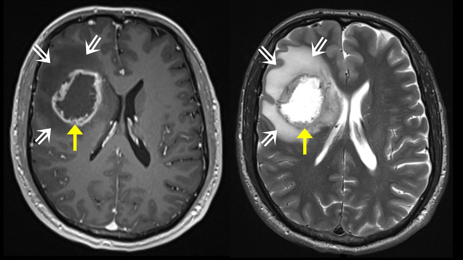 Endstadium gehirntumor glioblastom Gehirntumor: Krebs